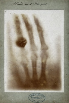 First medical X-ray, December 22, 1895.